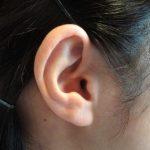 難聴が治るという可能性